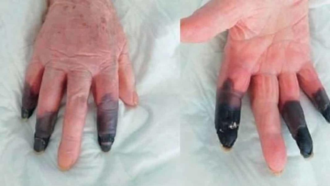 Kangren olan 86 yaşındaki kadın 3 parmağını kaybetti