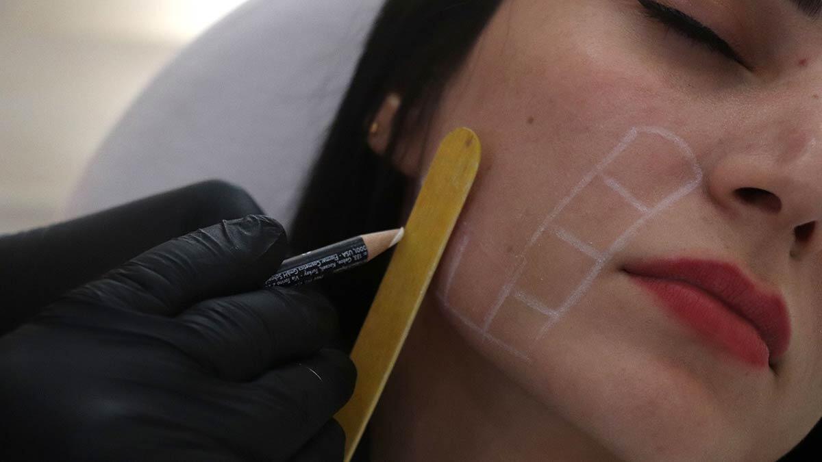 Ameliyatsız yüz germede endopeel yöntem