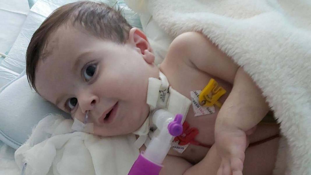 Rüzgar bebek yaşam mücadelesi veriyor